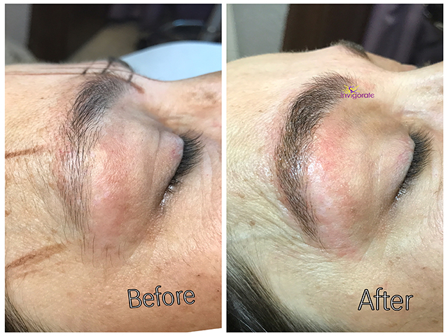 Eyebrow Microblading, Brow microblading